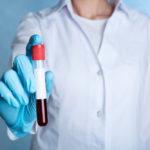 Normala blodvärden män och kvinnor