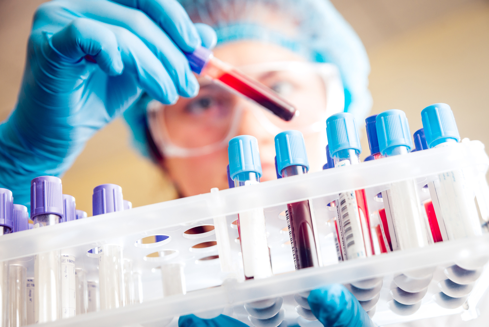 Blodprover kan minska oro