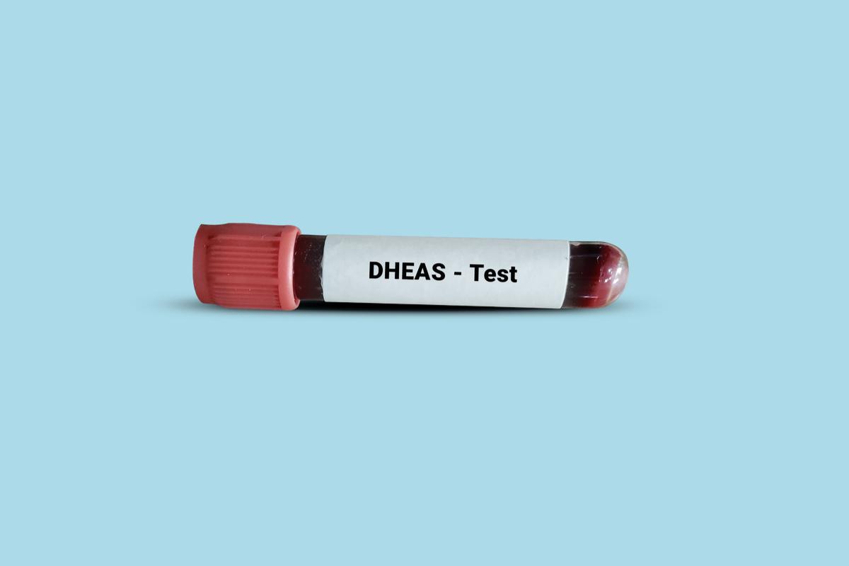 DHEAS och stress