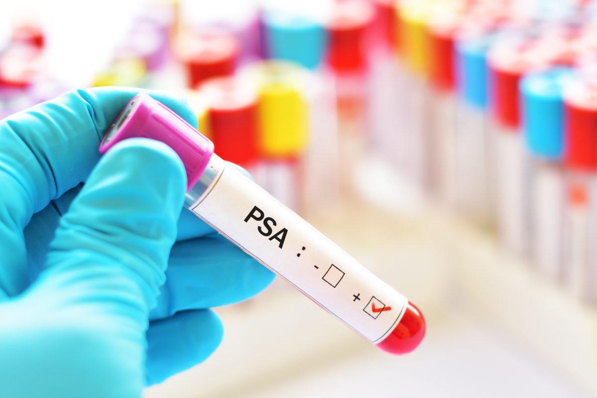 Socialstyrelsen: Vi rekommenderar inte allmän screening med PSA-blodprov för upptäckt av prostatacancer