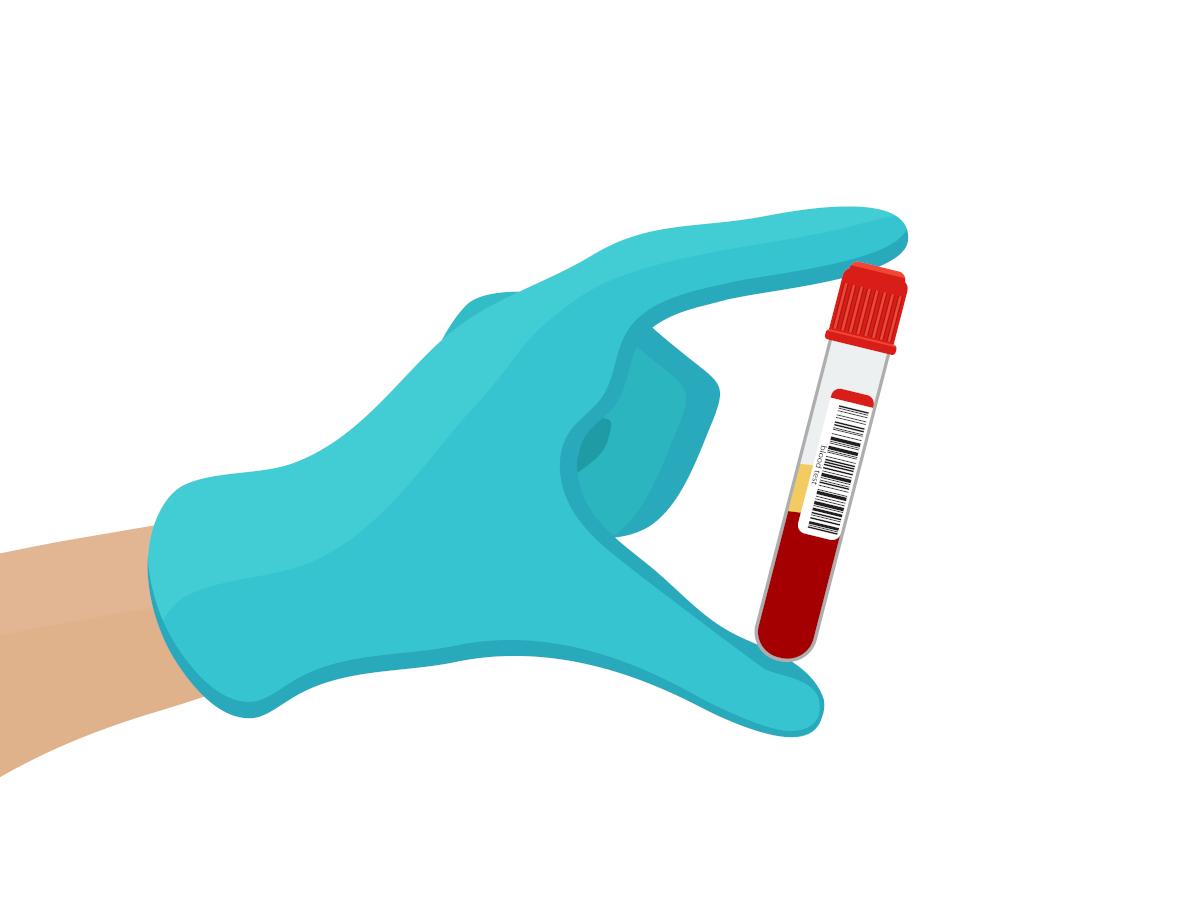 blodprov och PSA